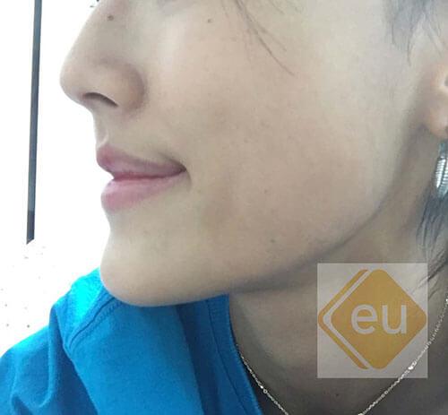 ใบหน้าด้านข้าง-ก่อนผ่าตัดขากรรไกร