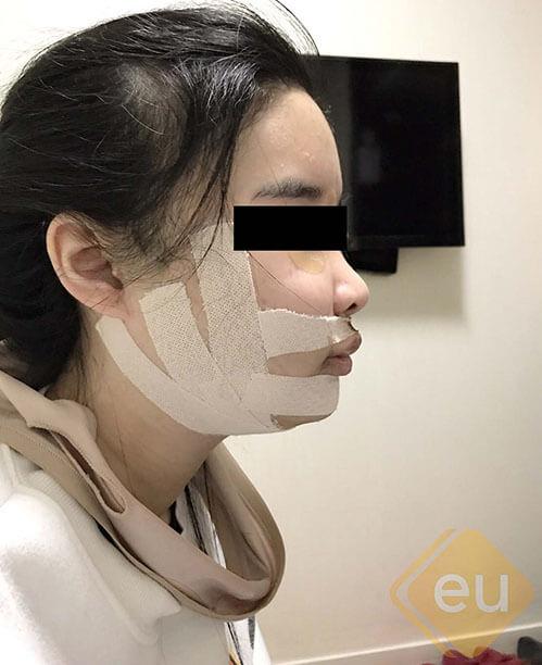 ผ่าตัดขากรรไกร เกาหลี