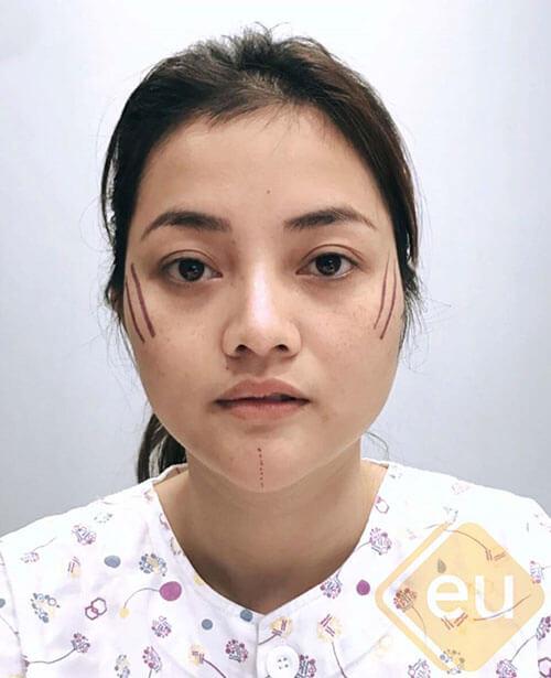 ก่อนผ่าตัดศัลยกรรมคาง