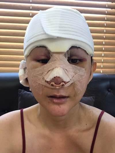 วันที่-8-หลังจากผ่าตัดเอนโดไทน์